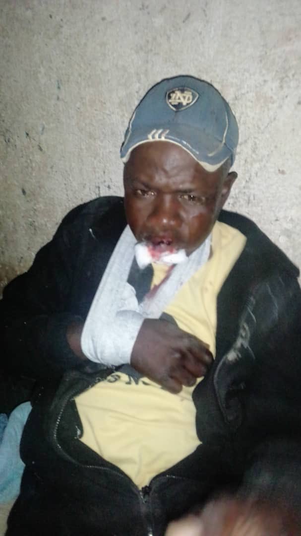 Man Brutally Assaulted By Soldiers For Violating Curfew