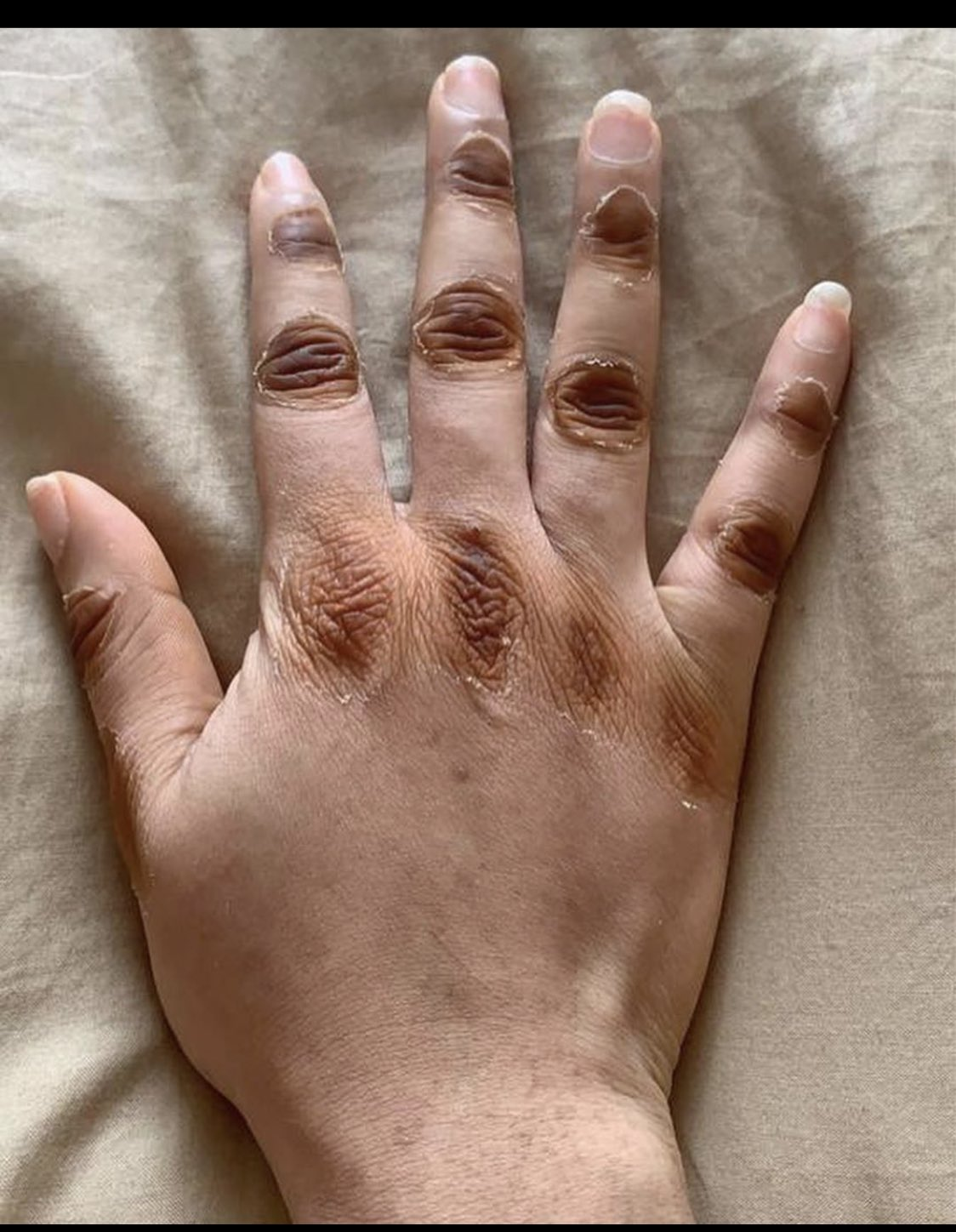 Picture of Bleached Hand, The Shocking Things Women Do